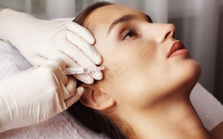Биоармирование лица: что это такое