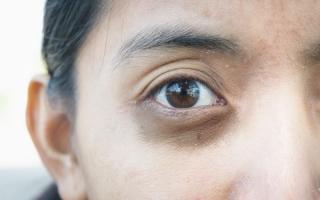 Темные круги под глазами: причины и методы устранения