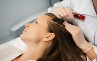 Мезотерапия для волос: все о процедуре