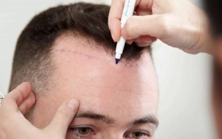 Пересадка волос — как проводится процедура?