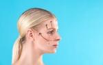 Эндоскопическая подтяжка лица: как делается и эффективность