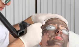 Лазерный карбоновый пилинг: все о процедуре
