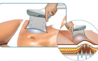 Криолиполиз: описание процедуры
