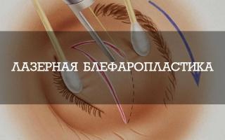 Лазерная блефаропластика: все об операции + отзывы и результаты на фото