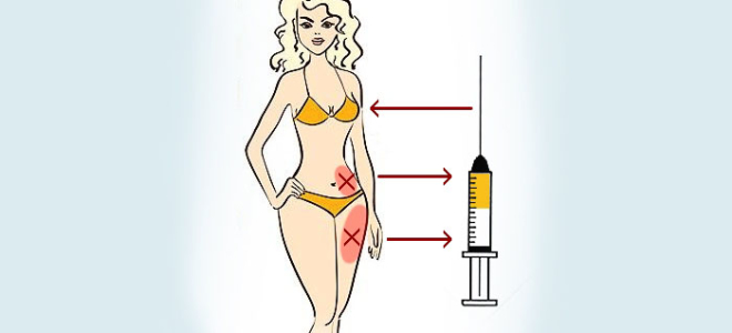 Липофилинг груди: все об операции