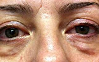 Грыжи под глазами: причины и способы лечения