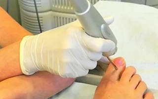 Лечение грибка ногтей лазером: описание процедуры