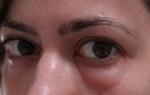 Отеки под глазами после биоревитализации: причины и лечение