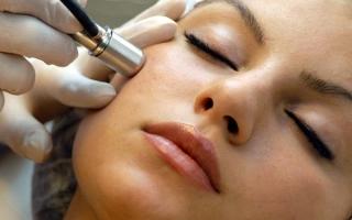 Алмазная дермабразия: описание процедуры