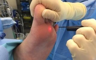 Удаление мозолей лазером: как проходит процедура