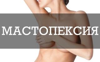 Мастопексия: все об операции