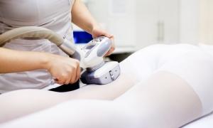 LPG массаж: описание процедуры