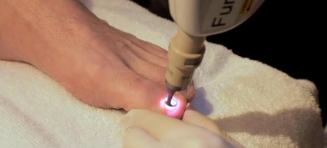 Лечение вросшего ногтя лазером: все об операции