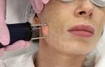 Фракционное лазерное омоложение: описание процедуры