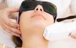 Лазерный пилинг лица — как проводится процедура?