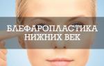 Блефаропластика нижних век: все об операции и обзор безоперационных способов + отзывы и фото результатов
