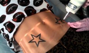 Удаление татуировок лазером: все о процедуре
