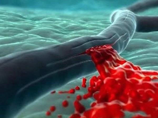 Хрупкость сосудов является противопоказанием к блефаропластике