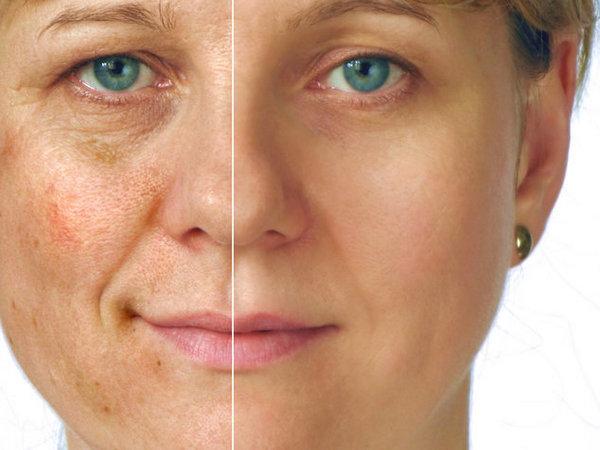 Препарат также вводят, когда кожа лица пациента излишне пигментирована