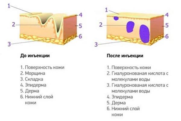 До и после инъекции препарата с гиалуроновой кислотой