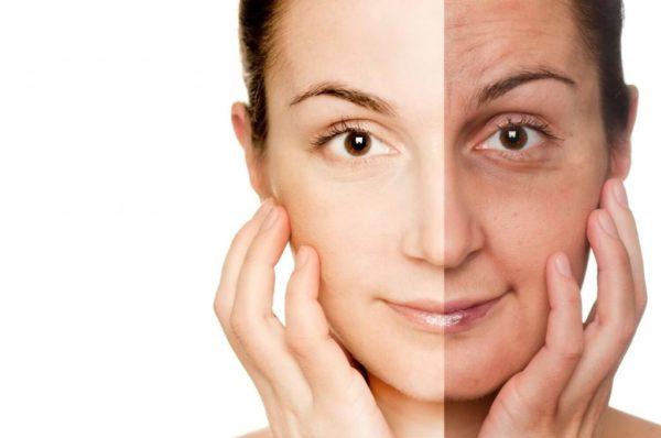 Благодаря инъекции гиалуроната кожа улучшается, а вот из-за алкоголя - ухудшается