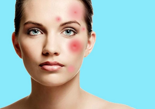 При воспалениях на коже лица такую процедуру делать нельзя