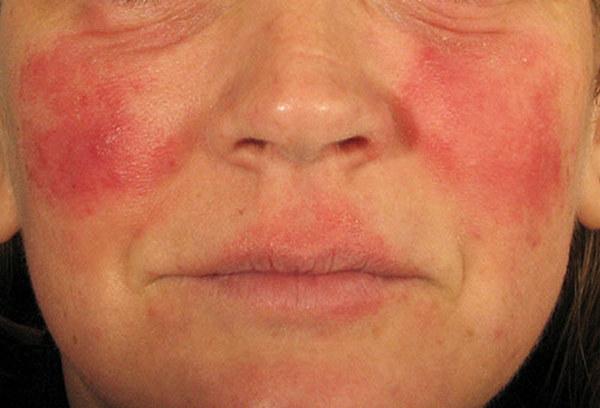 При повреждениях кожи лица, например, ожогах, процедуру не проводят