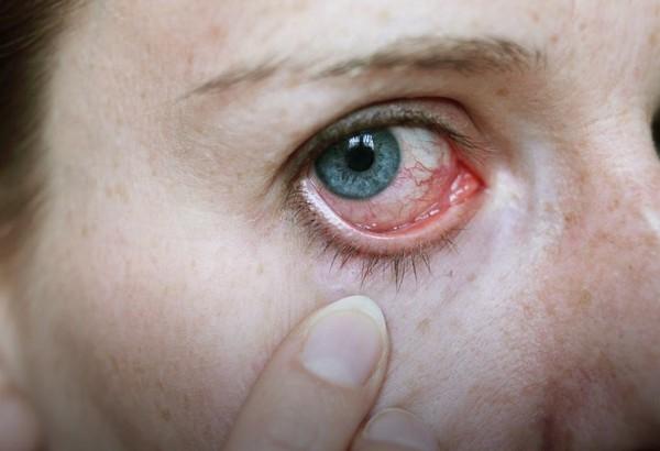 Возможное побочное действие – сухость глаз