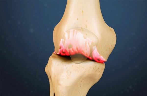 Душ Шарко запускает процесс восстановления тканей