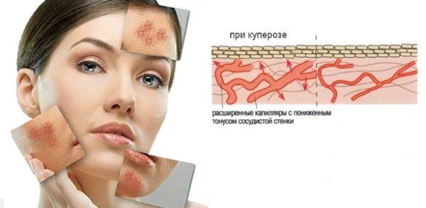 Сауна – причина появления купероза