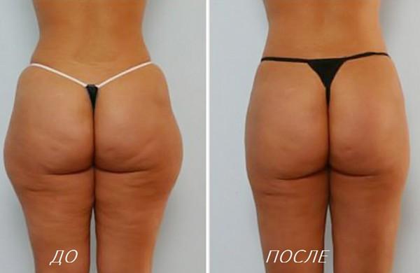 Фото до и спустя три месяца после проведения криолиполиза №1