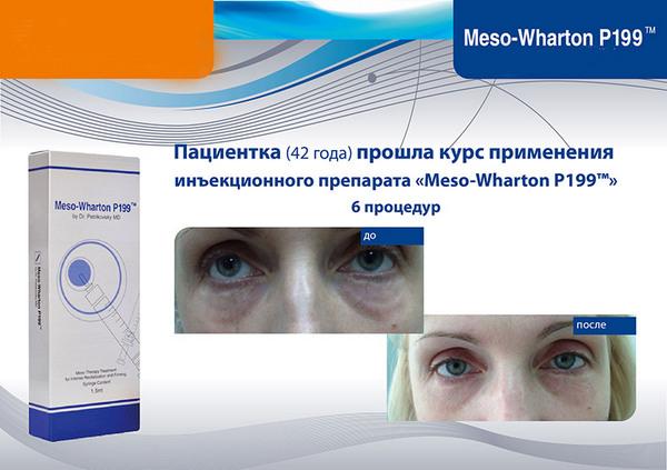 Людям 40-50 лет необходимо 4-6 процедур с использованием такого препарата