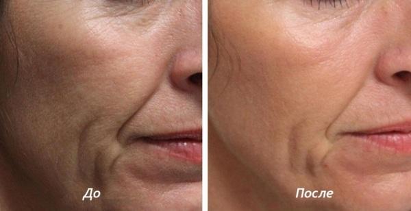 Для поддержания эффекта на возрастной коже необходимо регулярное прохождение курсов