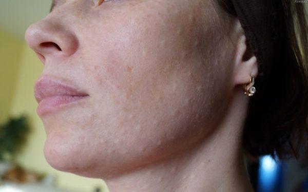 Повреждение кожи – неизбежное последствие, пусть оно и временное
