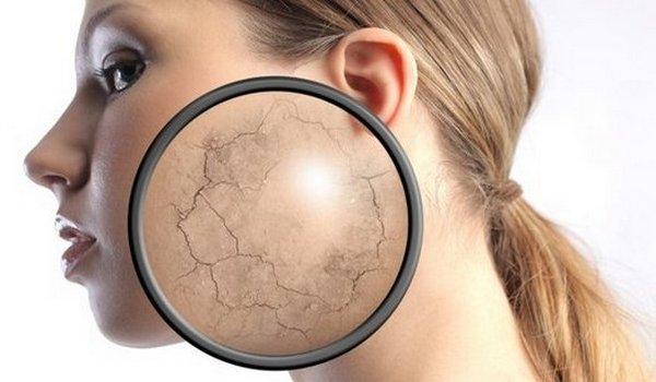Загар после биоревитализации может привести к шелушению и сухости кожи