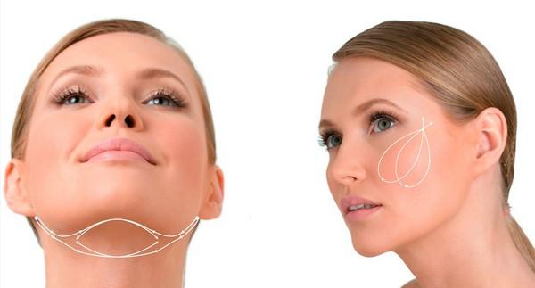 Липолитики с гиалуроновой кислотой не только помогают в избавлении от жира, но и способствуют омоложению кожи