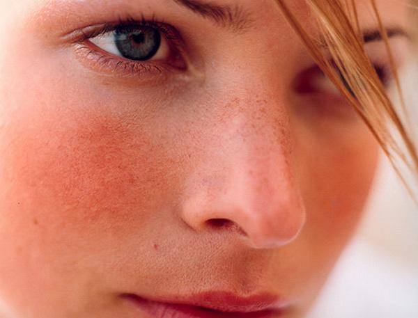 При появлении каких-либо осложнений нужно обратиться к косметологу