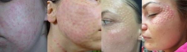Нужно обратиться к врачу, если покраснение кожи лица и папулы долгое время не проходят
