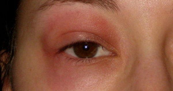Если отёк появляется после определенных препаратов, значит, речь идёт об аллергии