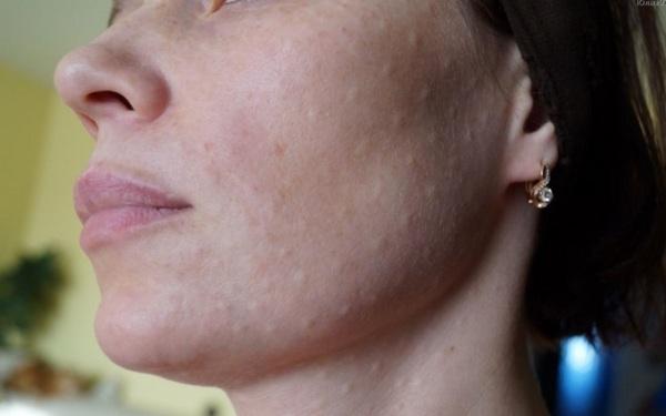 Не нужно пытаться избавиться от папул – это может ухудшить состояние кожи