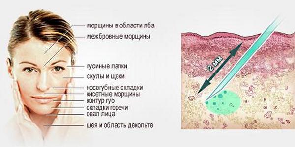 В ходе биоревитализации глубокие слои кожи увлажняют с помощью гиалуроновой кислоты
