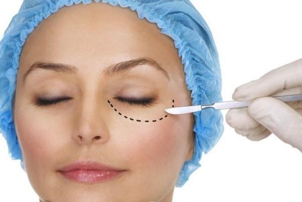 Классическая блефаропластика – довольно опасный метод исправления дефектов кожи вокруг глаз