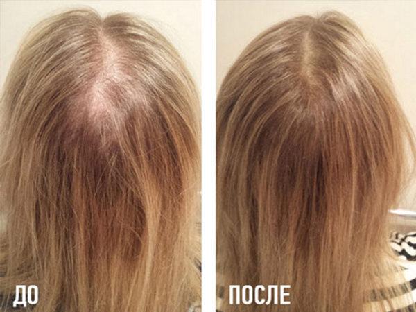 Благодаря такой процедуре состояние волос значительно улучшается