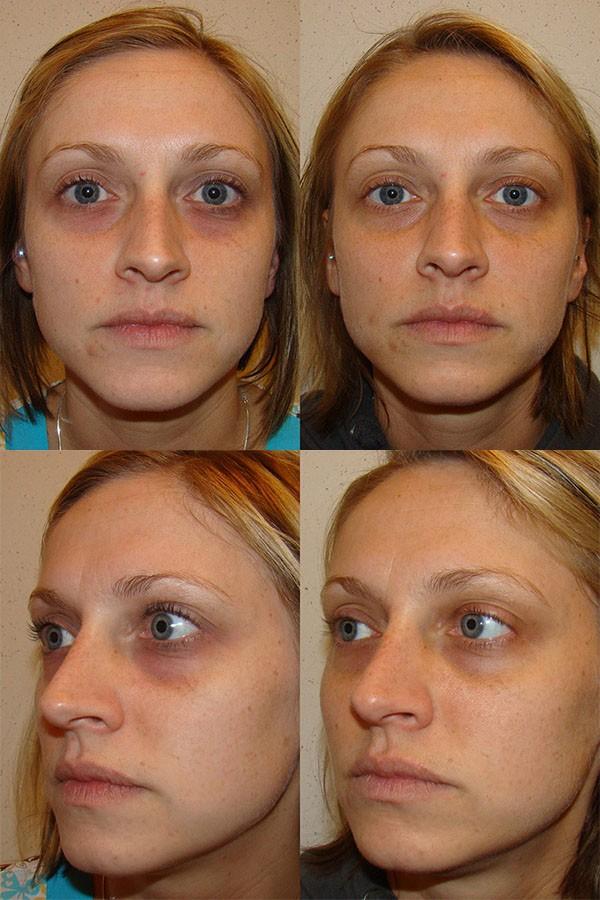 Фото до и после проведения карбокситерапии №2