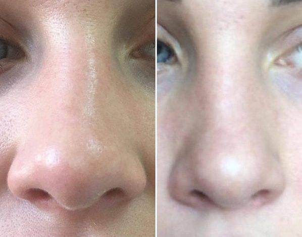 Липолитики помогут исправить форму носа