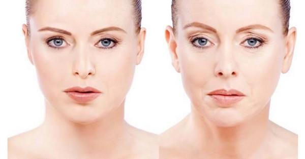 LPG массаж помогает придать контуры лицу и телу