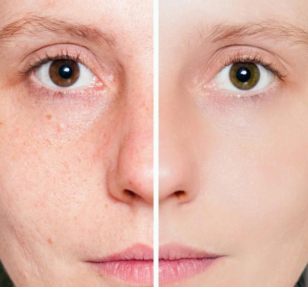Фото до и после проведения карбокситерапии №3