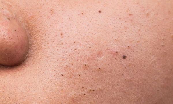 Неправильный уход за жирной кожей может стать причиной возникновения комедонов