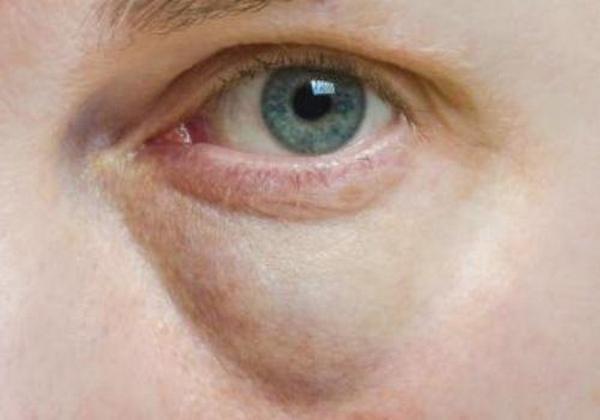 К легким побочным эффектам относят отеки, синяки