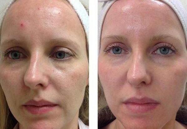 Для улучшения состояния кожи лица потребуется 5-6 процедур